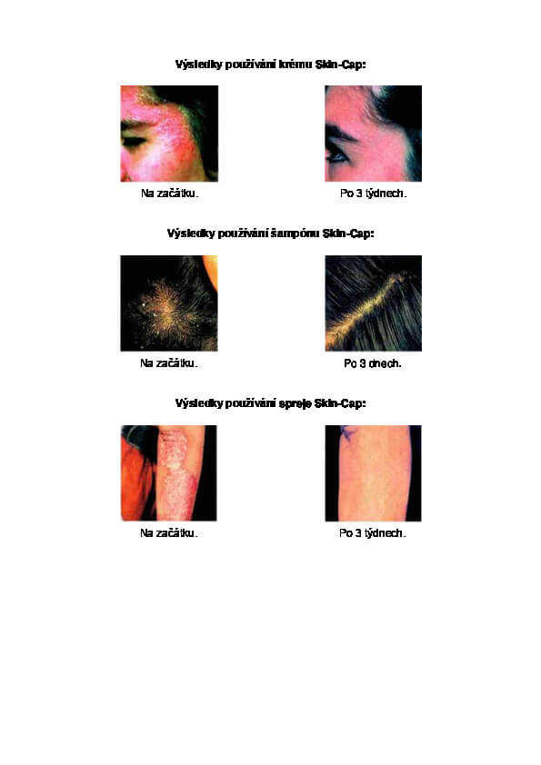Výsledky používání produktů Skin-cap